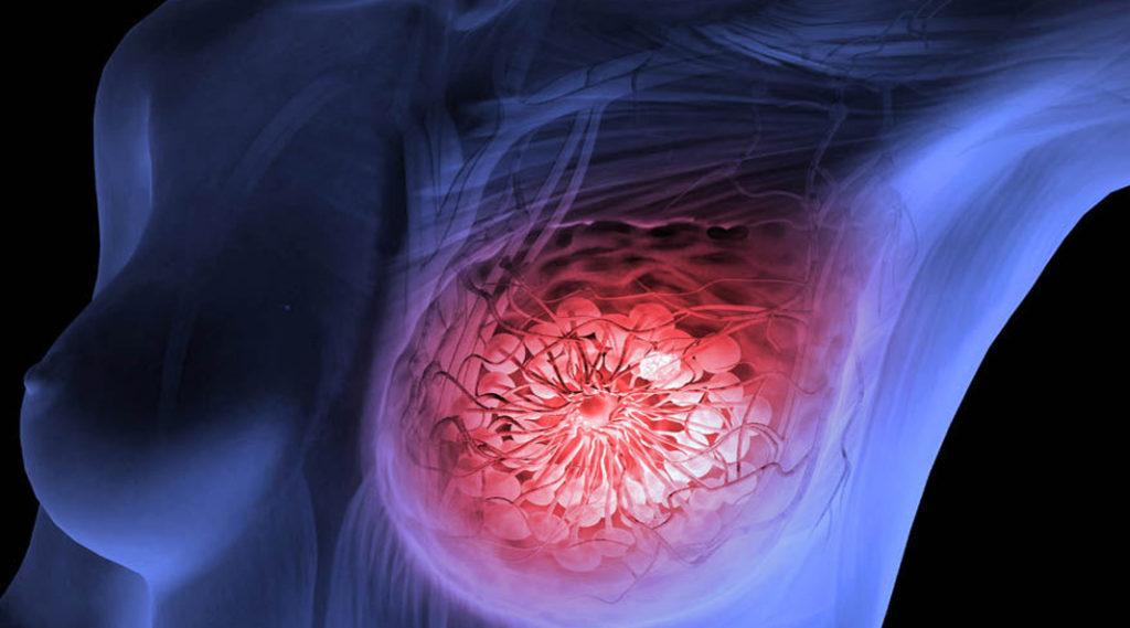 negii sunt primele semne human papillomavirus and nasopharyngeal cancer