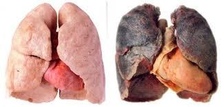 Viitorul transplanturilor pulmonare