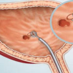 Atezolizumab, prima imunoterapie  pentru cancerul de vezică urinară avansat, intră în programele naţionale ale mai multor ţări din vestul Europei