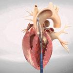 Înlocuirea supapei aortice transcatheter Transcatheter Aortic Valve Implantation (TAVI)