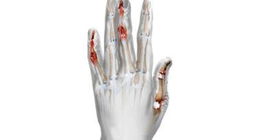 A fost acordată autorizația de introducere pe piața UE pentru Taltz (Ixekizumab) folosit în  tratamentul artritei psoriazice active