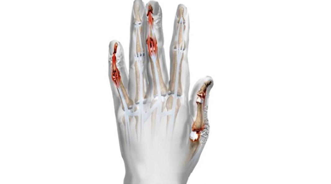 spalarea sapunului pentru tratamentul artritei