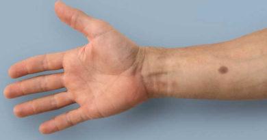 Tatuajul biomedical, o nouă inovație în detectarea precoce a cancerului
