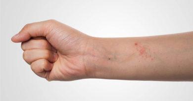 Cercetare: noi cauze pentru pielea uscata sau inflamata
