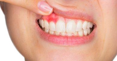 Știi să recunoști simptomele abcesului dentar?