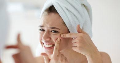 Știți care sunt cauzele acneei?
