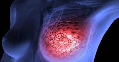 Tratamente vechi, abordări noi în tratarea cancerului mamar triplu negativ