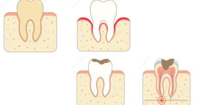 O nouă descoperire în domeniul stomatologiei!