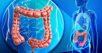 Care este legătura dintre obezitate și inflamația colonului?