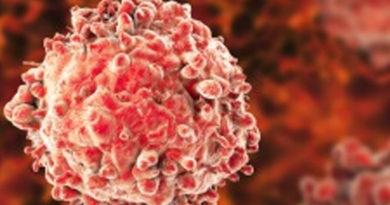 A fost descoperită proteina responsabilă de apariția leucemie