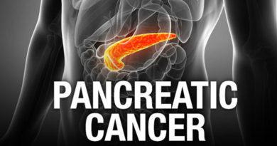 Testul care poate descoperi cancerul pancreatic în stadii incipiente