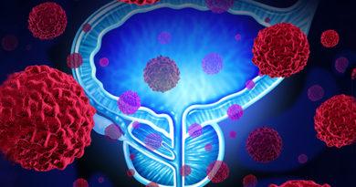 S-a descoperit o nouă genă implicată în dezvoltarea cancerului de prostată