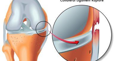 Cum se repară ruptura de ligament
