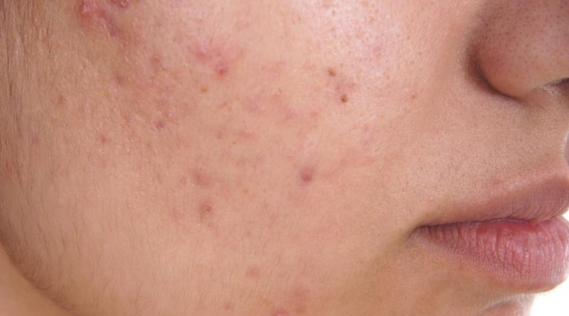 Un nou medicament pentru acnee