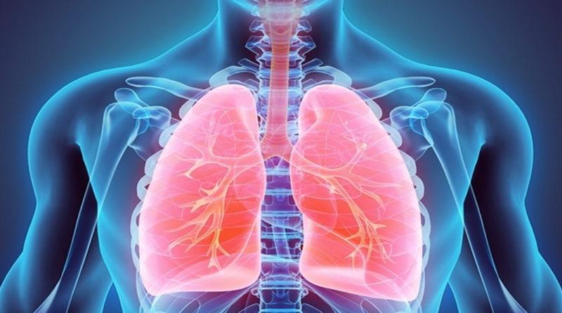 Legătura dintre imunitate și bolile pulmonare obstructive cronice