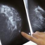 Cancerul mamar, o noua descoperire