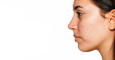 Este periculos tratamentul cu antibiotice pentru acnee?