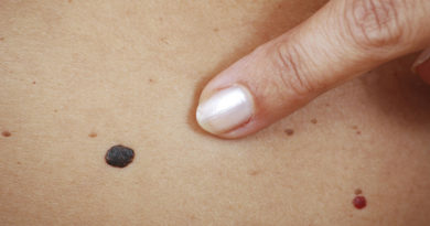 Cercetătorii sunt din ce în ce mai aproape de crearea unui medicament împotriva cancerului de piele