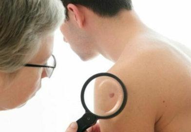 Studiu îngrijorător: din ce în ce mai mulți bărbați se îmbolnăvesc de cancer