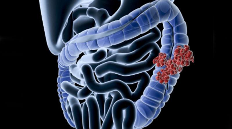 Află totul despre bacteria care provoacă apariția cancerului de colon!