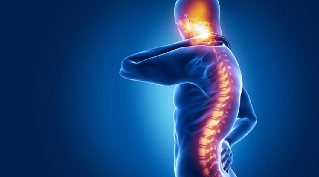spinal cord injury patientsa - 1067×593