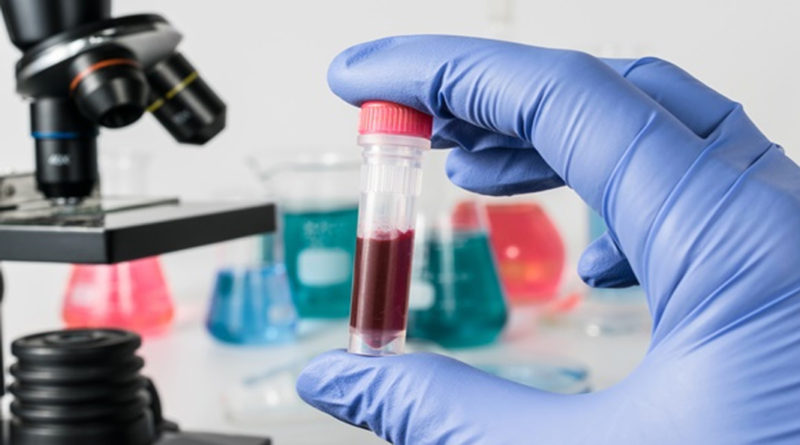 Cercetătorii belgieni au descoperit bacterii în sângele pesoanelor cu HIV, cancer și alte afecțiuni