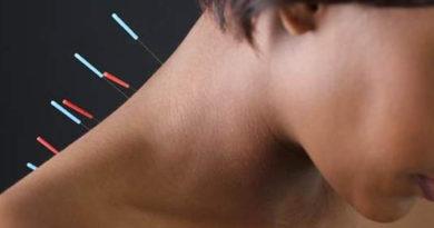 Acupunctura, benefică pentru femeile aflate la menopauză