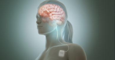 Stimularea nervului vag, o metodă eficientă de tratament pentru persoanele care suferă de o afecțiune psihică gravă
