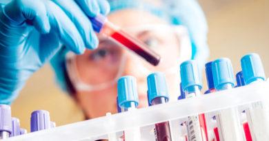 Testul de sânge care poate măsura intensitatea durerilor simțite de pacienți