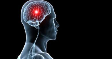 Tratamentul care poate diminua leziunile creireului cauzate de accidentul vascular cerebral