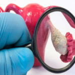 Compusul care ține pacientele departe de recidiva cancerului ovarian