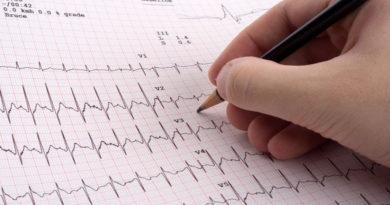 Iată factorii care duc la apariția aritmiei cardiace!